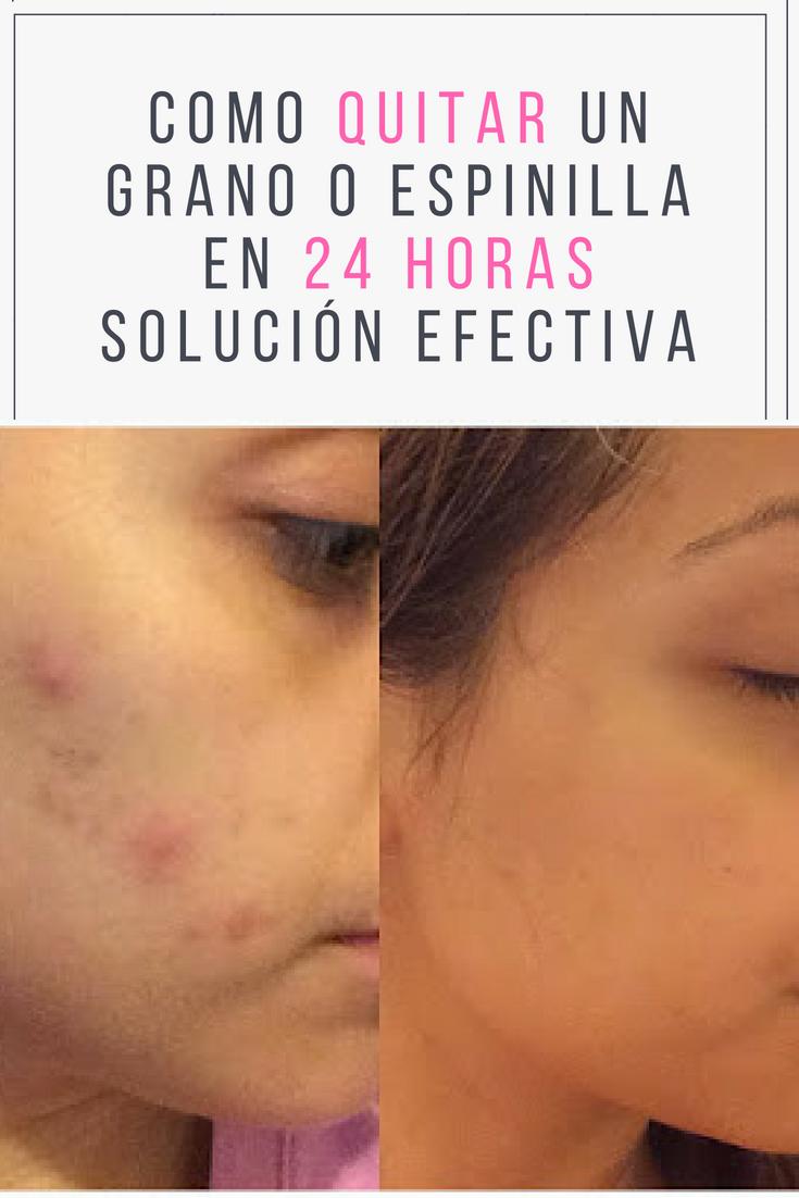 Como Quitar Un Grano O Espinilla En 24 Horas Solución Efectiva Quitargrano Eliminarespinilla Salud Belleza Skin Tips Skin Care Acne Natural Beauty Tips