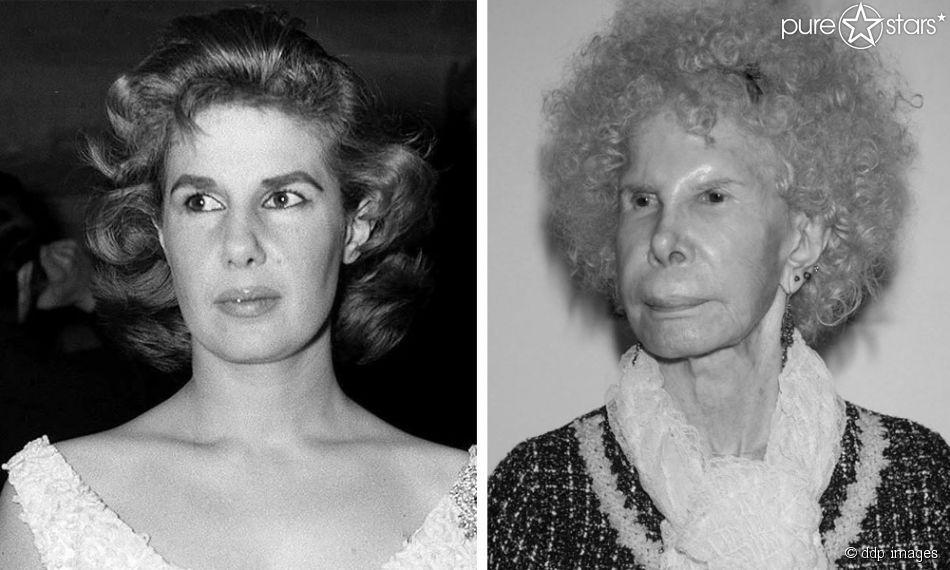 Photos In Ihrer Autobiografie Versicherte Die Herzogin Von Alba Sich Jemals Unters Messer Gelegt Zu Haben Dennoch War Die Ein Royal Jewels Portrait Fashion