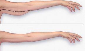 Voici la meilleure façon de perdre votre gras de bras! Ne