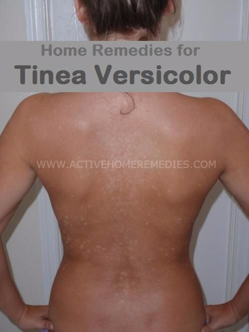 30ca5d7b6d79d88e7aee925f1bbef5ae - How Long Does It Take To Get Rid Of Tinea