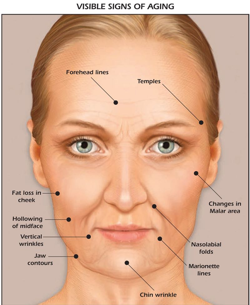 Facial changes related to aging