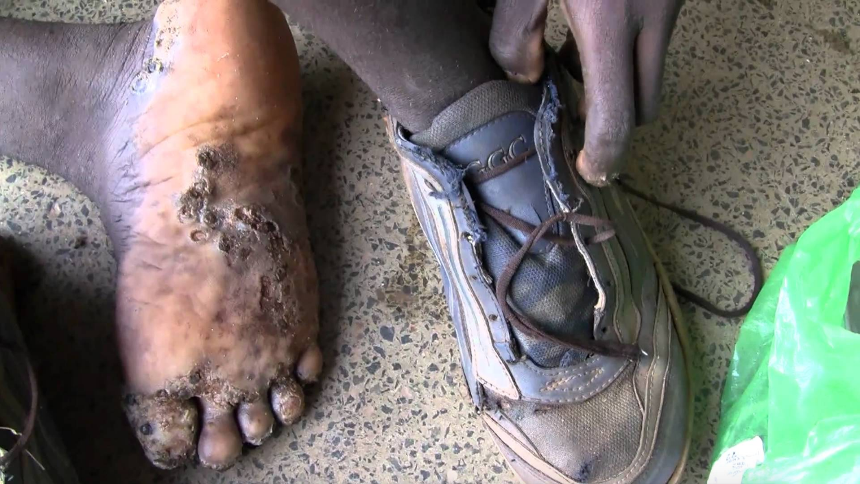 tungiasis skin infestation of the tunga penetrans flea