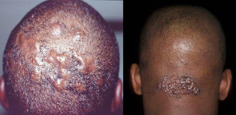 Ingrown hair on scalp is no abnormal skin condition