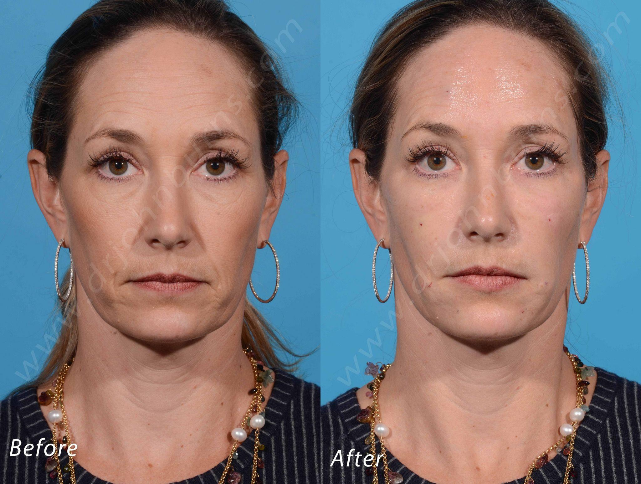 Facial cosmetic surgery dallas brilliant phrase
