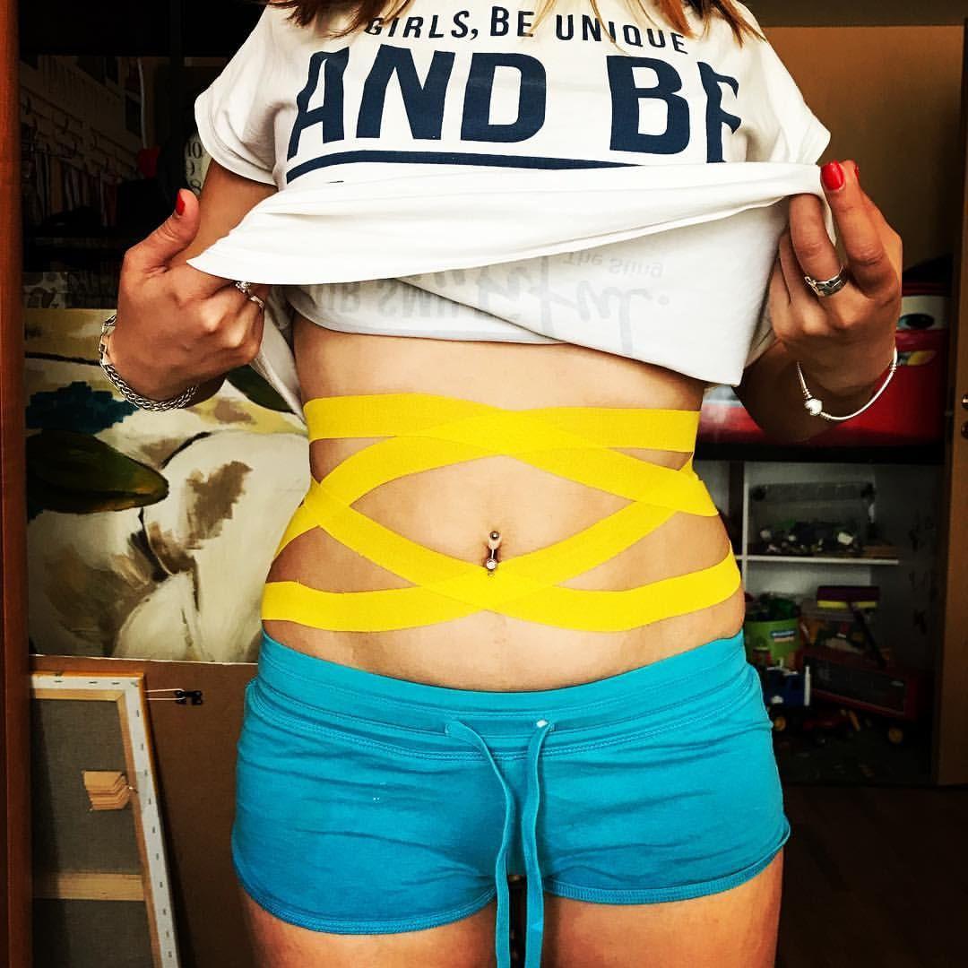 пошаговое тейпирование живота для похудения