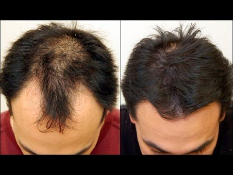 Como hacer crecer mas cabello en la frente
