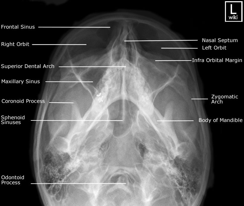 Facial Bones Radiographic Anatomy Wikiradiography Medical