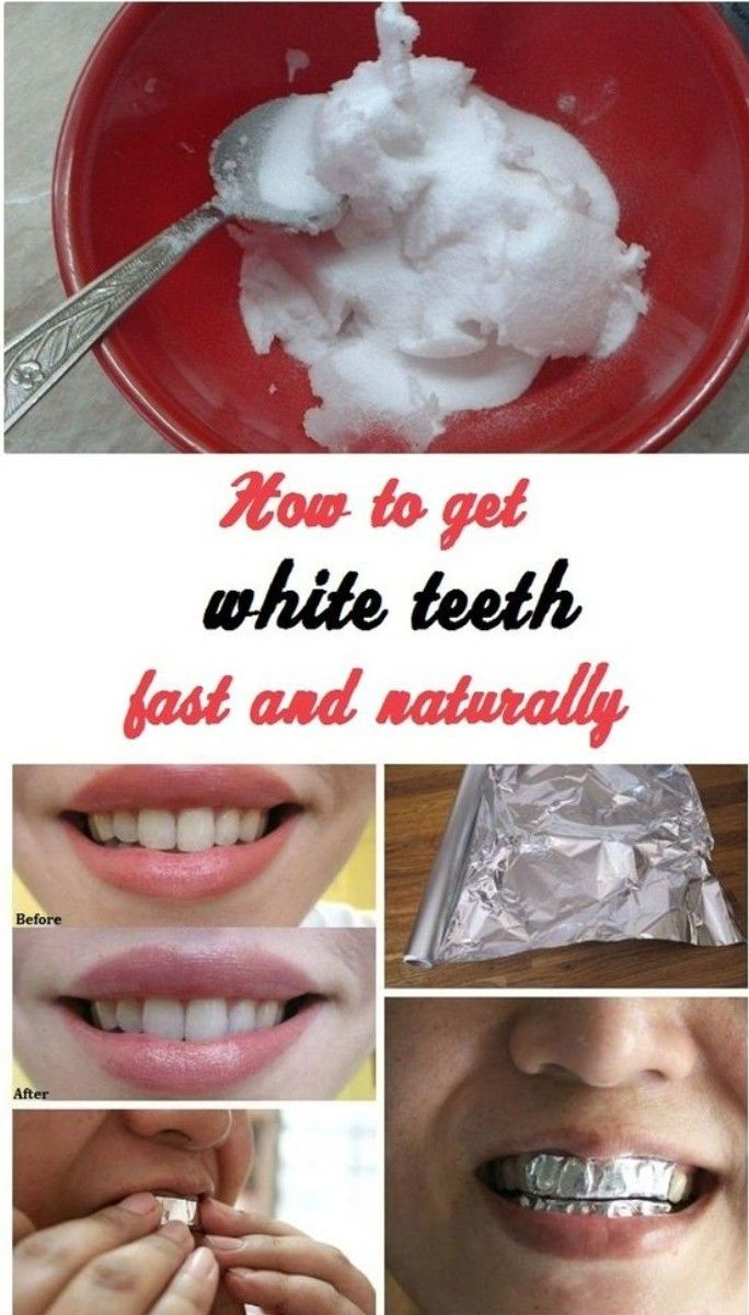 How To Whiten Your Teeth Naturally Without Hurting Your Enamel Set