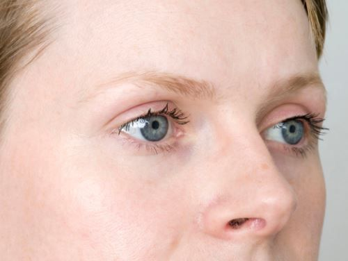 Hypothyroidism Eyebrows Pictures Eyebrow Loss And Thinning Due To