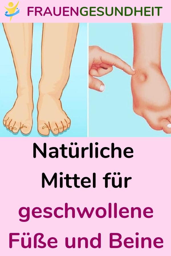 Naturliche Mittel Fur Geschwollene Fusse Und Beine Naturlichemittel Hausmittel Geschwollenefusse Geschwollenebeine Gesundheitstipps Medical Trending
