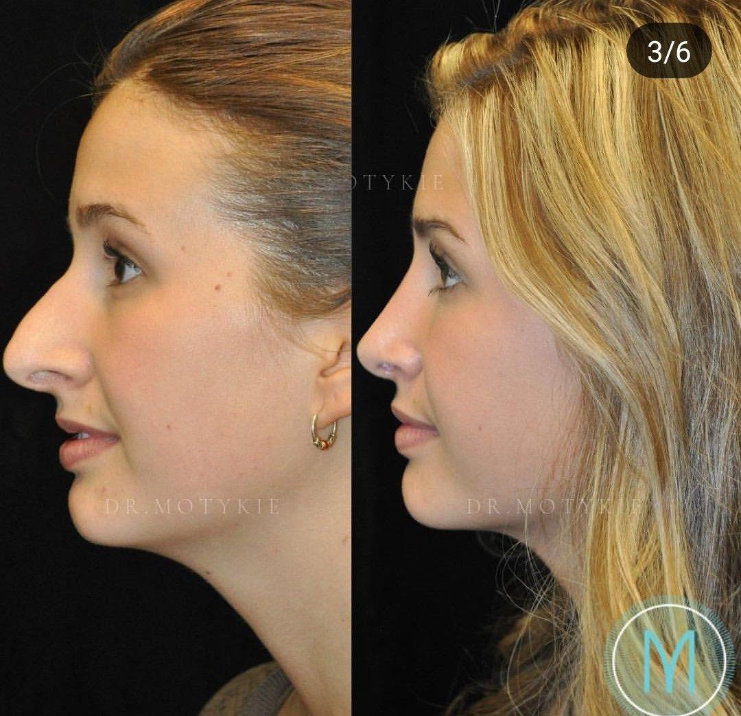 rhinoplasty & chin augmentation image by Katelyn Johns