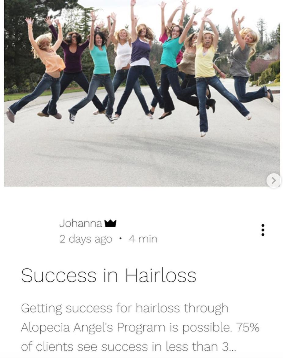Success In Hairloss Alopecia This Is How In 2020 Alopecia Alopecia Treatment Hair Loss