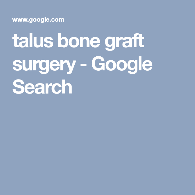 talus bone graft surgery - Google Search