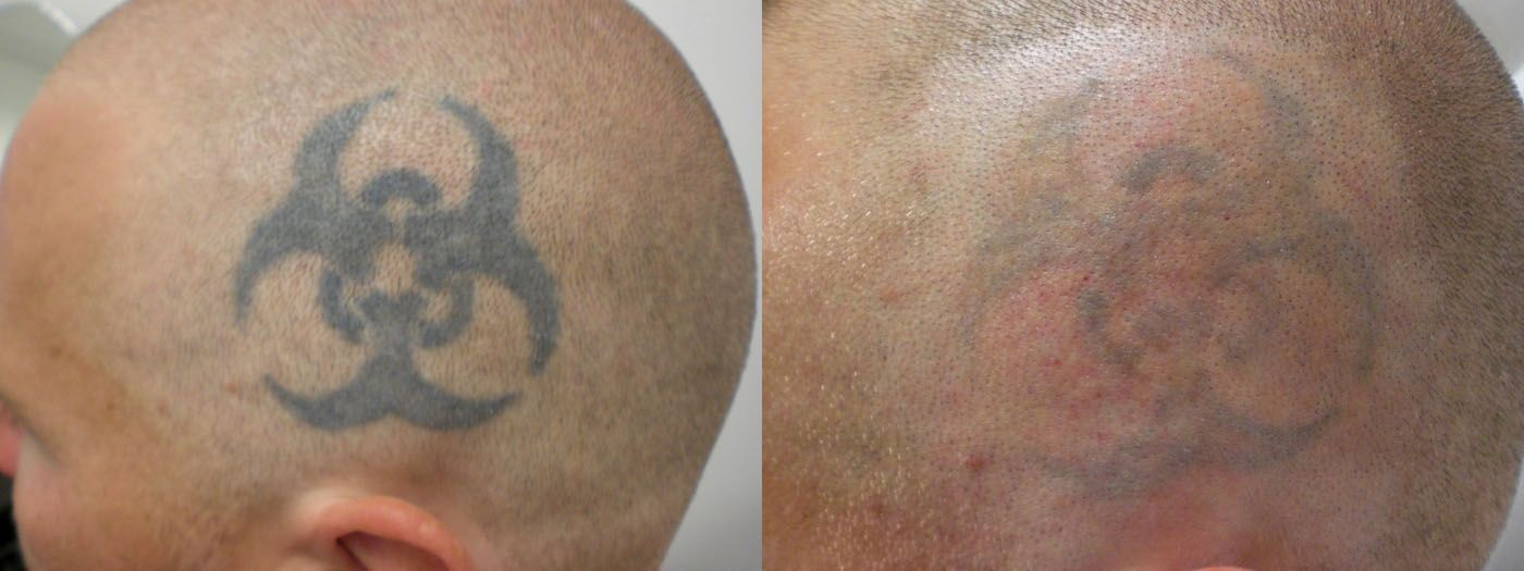 15++ Amazing Laser tattoo removal before after ideas in 2021