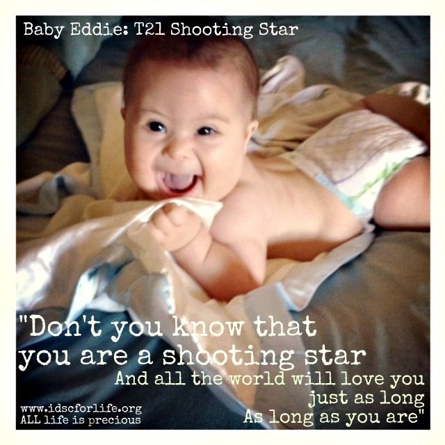 Baby Eddie - T21 Shooting Star! | Causes | Down syndrome