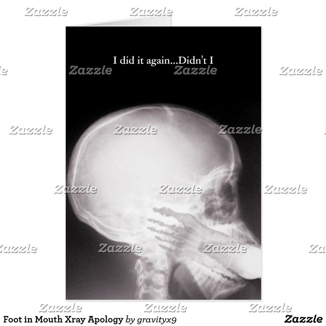Foot In Mouth Xray Apology Card