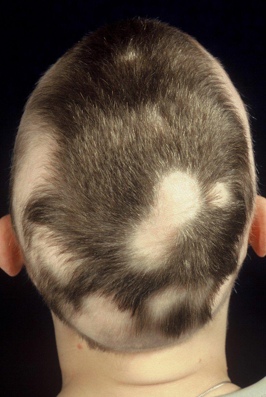 Der Kreisrunde Haarausfall Kreisrunder Haarausfall Frauen
