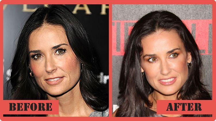 17 Best images about Celebrity Plastic Surgery Before and After on ...