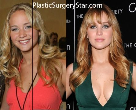 Jlaw Before & After implants +filler + botox + nose argumentation.