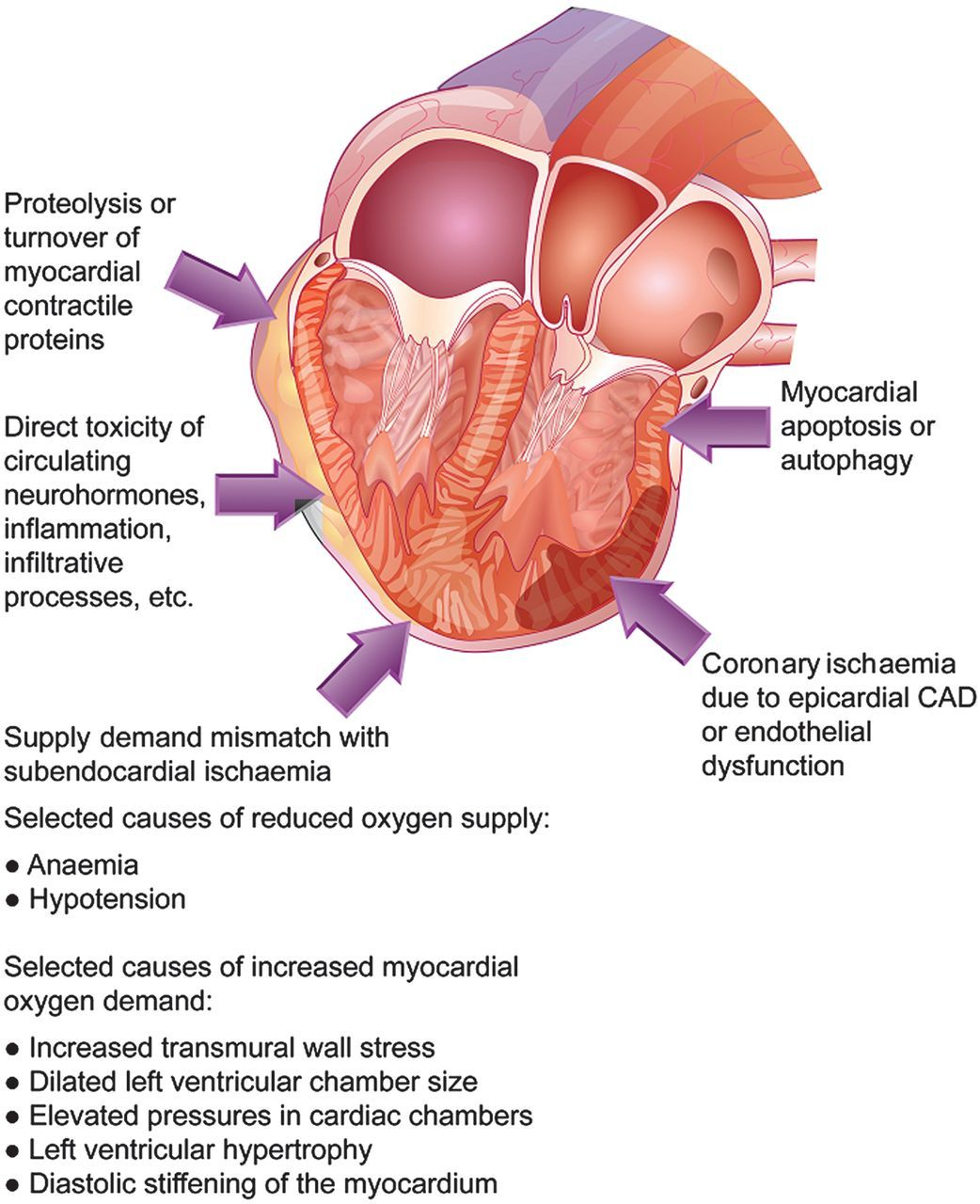 Troponin elevation in patients with heart failure: on behalf of the ...