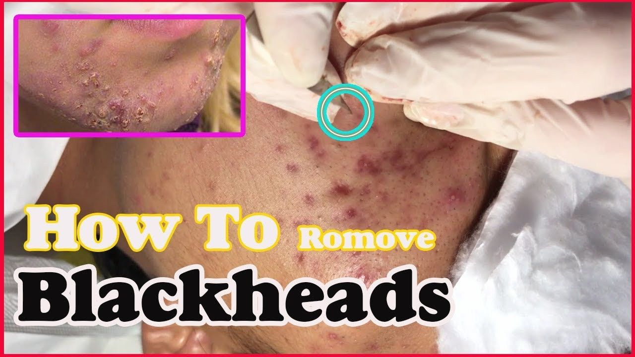 How to removal blackheads and whiteheads foreheads, blackhead