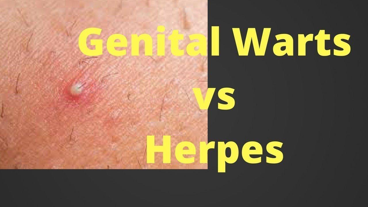 Hpv vs herpes warts, Types of Herpes papillomavirus behandeling