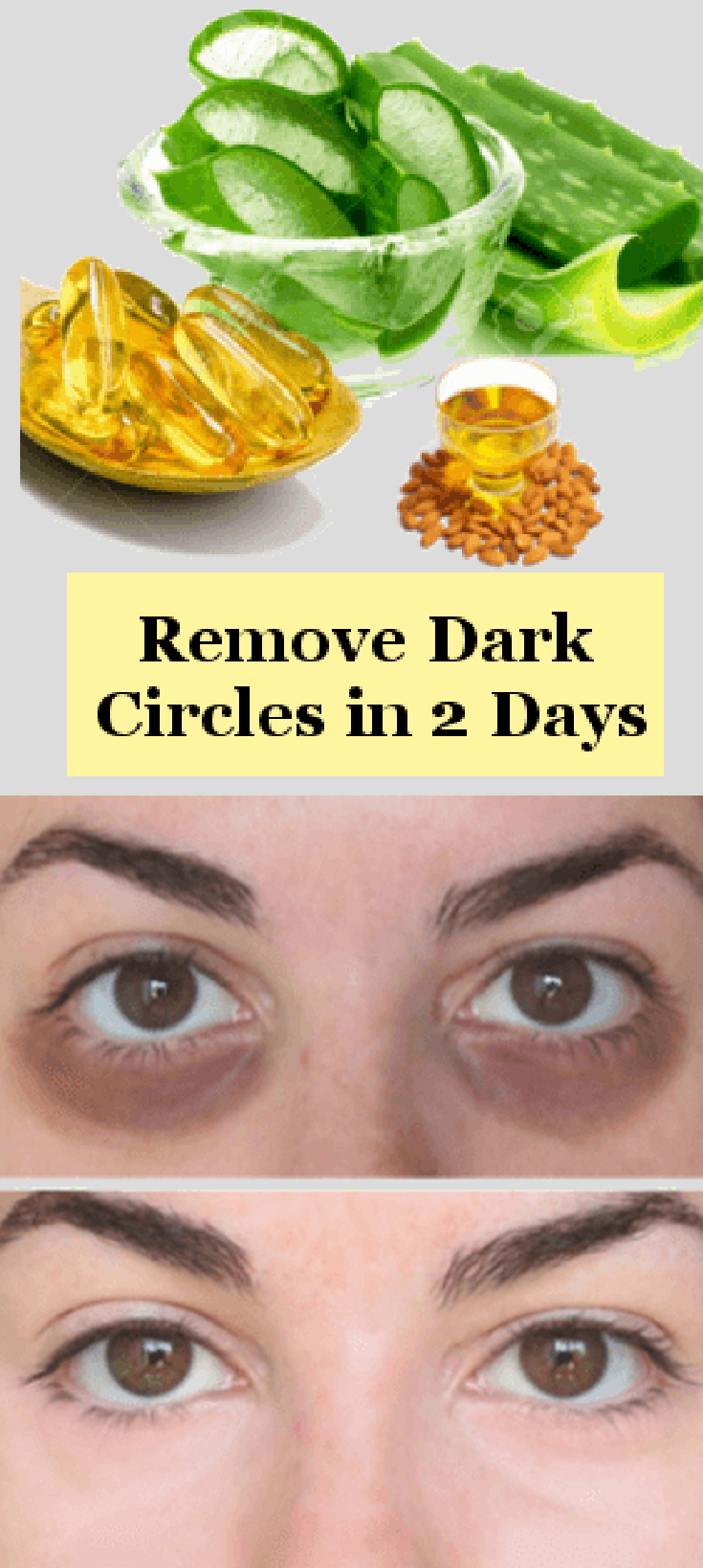 How to Remove Dark Circles in 2 days Permanently: Your ...