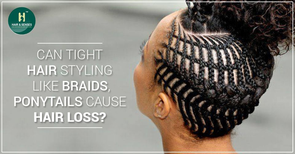 Can Tight Hair Styling Like Braids Ponytails Cause Hair Loss Hair Styles Natural Hair Styles Ponytail