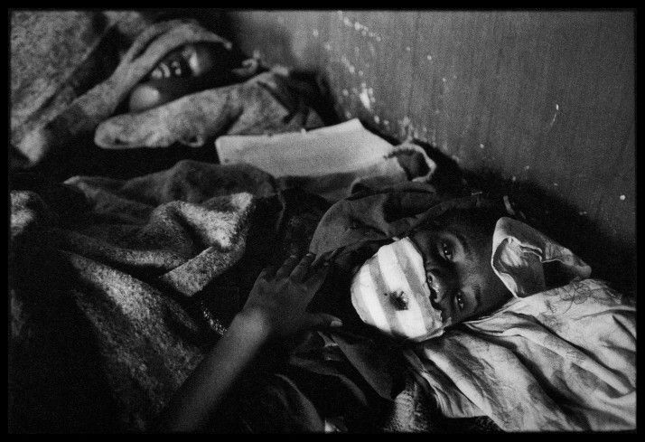 At the Red Cross clinic in Nyanza, Tutsis who had been freed from the death camp were treated for their wounds, Rwanda, 1994. By James Nachtwey