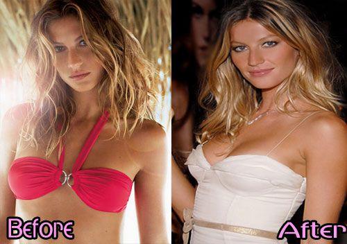 Gisele Bundchen Breast Implants Before and After Gisele Bundchen ...