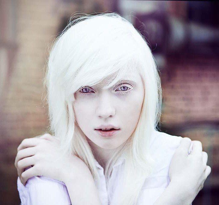 Albino Girl Albino Girl Albino Model Albinism