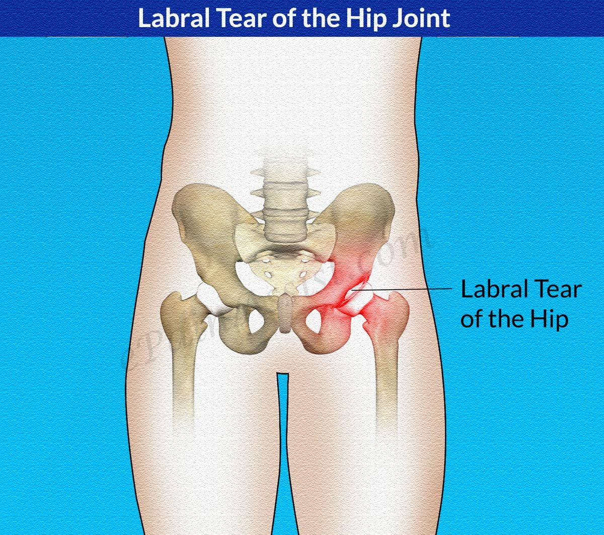 Causes of Labral Tear of the Hip Joint | Hip Strengthening Exercises ...