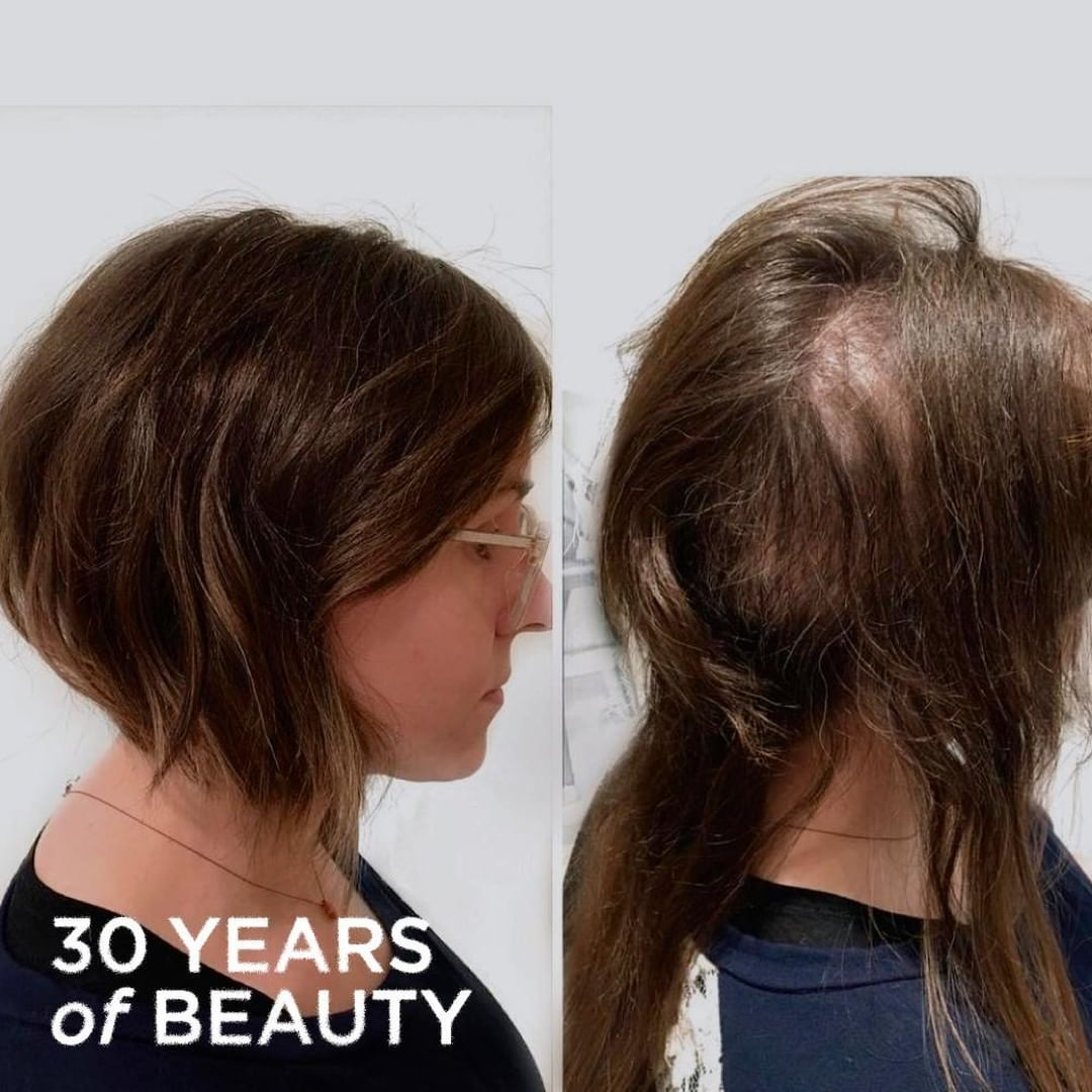 New The 10 Best Hairstyles Today With Pictures Trichotillomania Is A Hair Pulling Disease That Many Peopl Cool Hairstyles Hair Today Natural Hair Styles