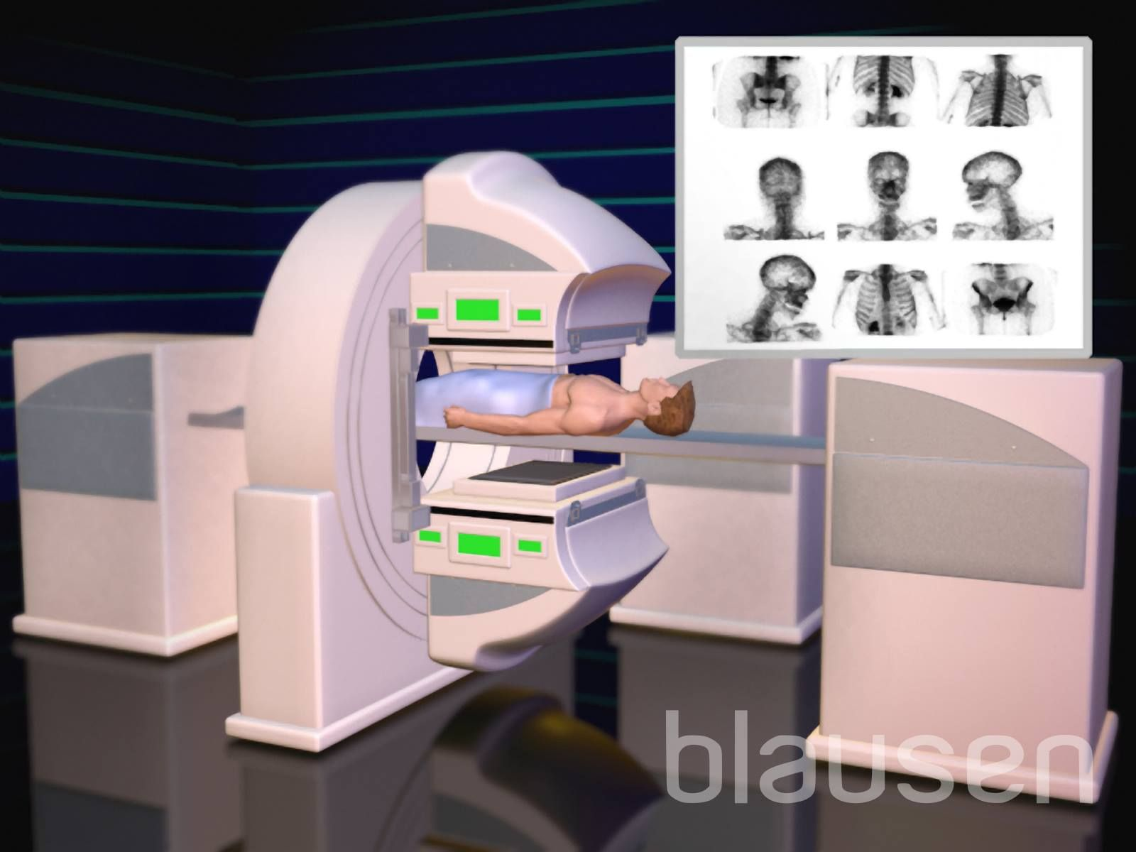 Bone Medical Education With 3d Animations In