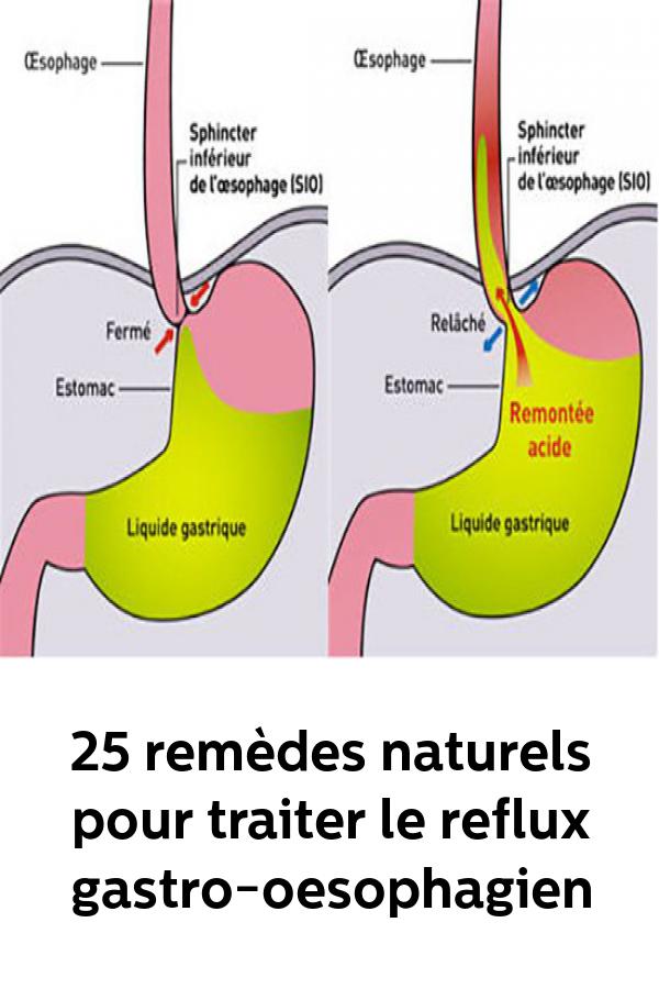 Regime Alimentaire Pour Reflux Gastro-oesophagien : regime, alimentaire, reflux, gastro-oesophagien, Épinglé, Remèdes, Naturels