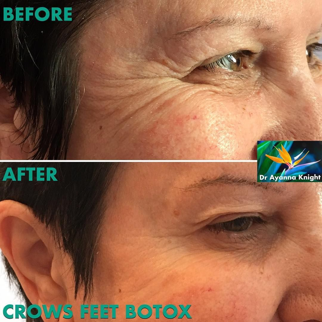 More fabulous, natural results following anti-wrinkle