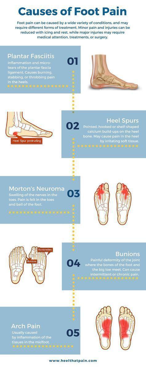 The Best Footwear For Plantar Fasciitis   Foot pain chart, Plantar ...