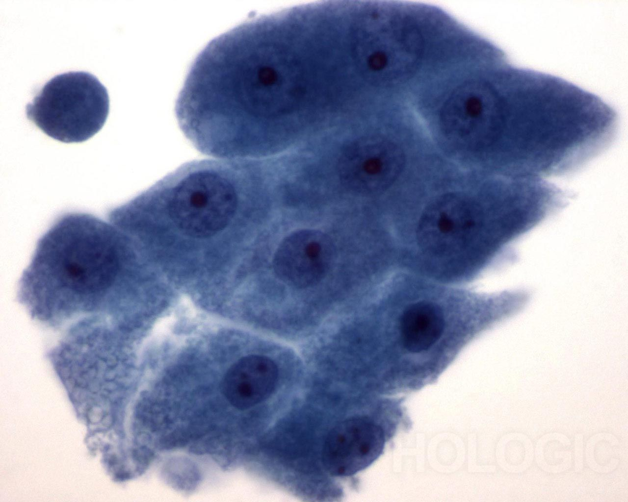 apocrine metaplasie (cystic) - Pap kleuring