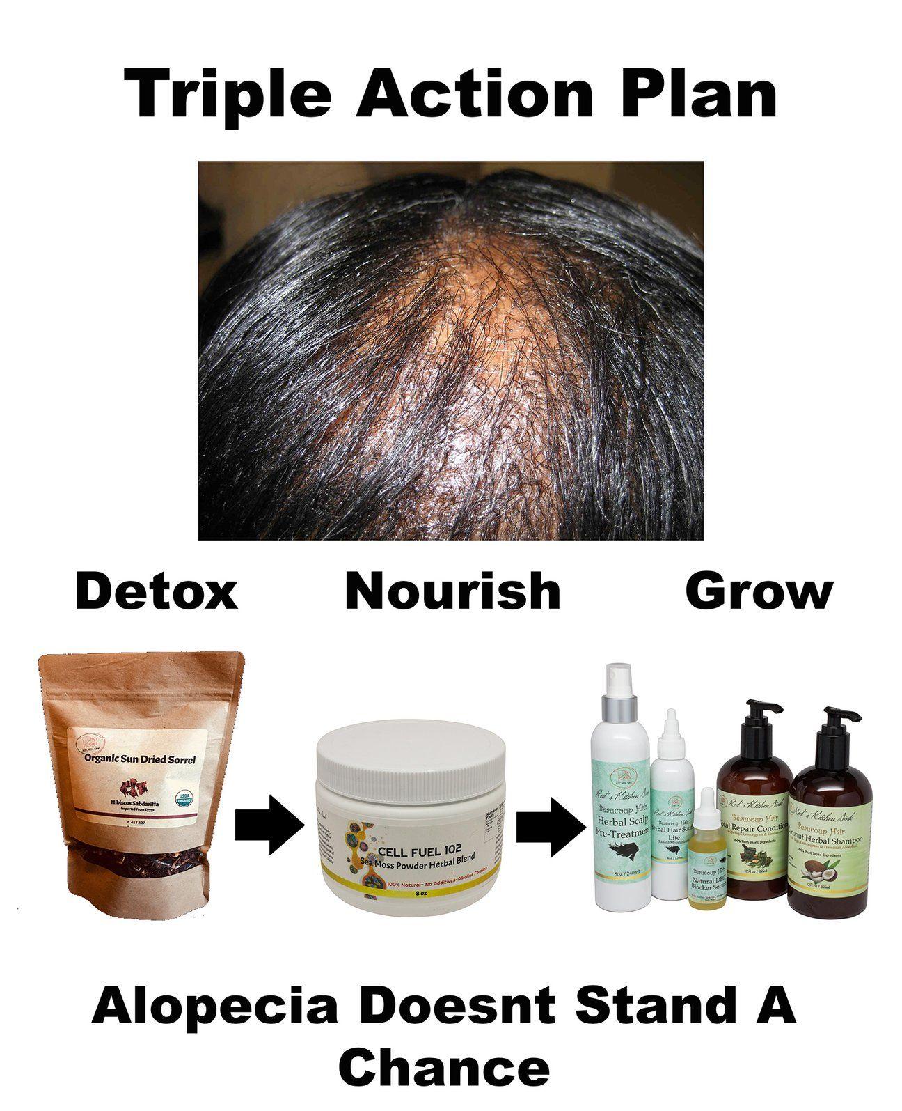Alopecia action pack hair loss hair system healthy