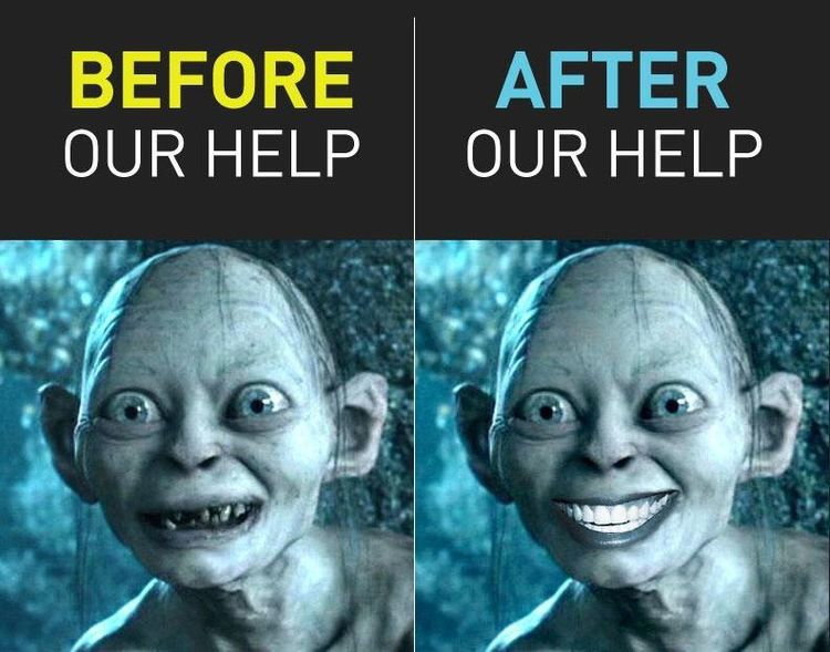 Do you think veneers have brought Golem back to a Smigel