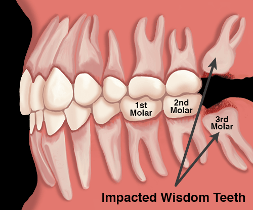 Good Cosmetic Dentistry It Works Oralhealthday Dentalcrowncases Impacted Wisdom Teeth Wisdom Teeth Wisdom Teeth Removal