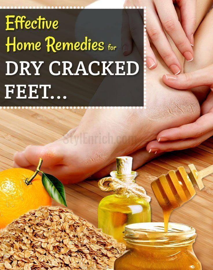 Natural-home-remedies-for-dry-cracked-feet #CrackedSkinOnHeels #BeautyDiySkincare #HomeMadeEyeCream #crackedskinonheels Natural-home-remedies-for-dry-cracked-feet #CrackedSkinOnHeels #BeautyDiySkincare #HomeMadeEyeCream #crackedskinonheels Natural-home-remedies-for-dry-cracked-feet #CrackedSkinOnHeels #BeautyDiySkincare #HomeMadeEyeCream #crackedskinonheels Natural-home-remedies-for-dry-cracked-feet #CrackedSkinOnHeels #BeautyDiySkincare #HomeMadeEyeCream #crackedskinonheels