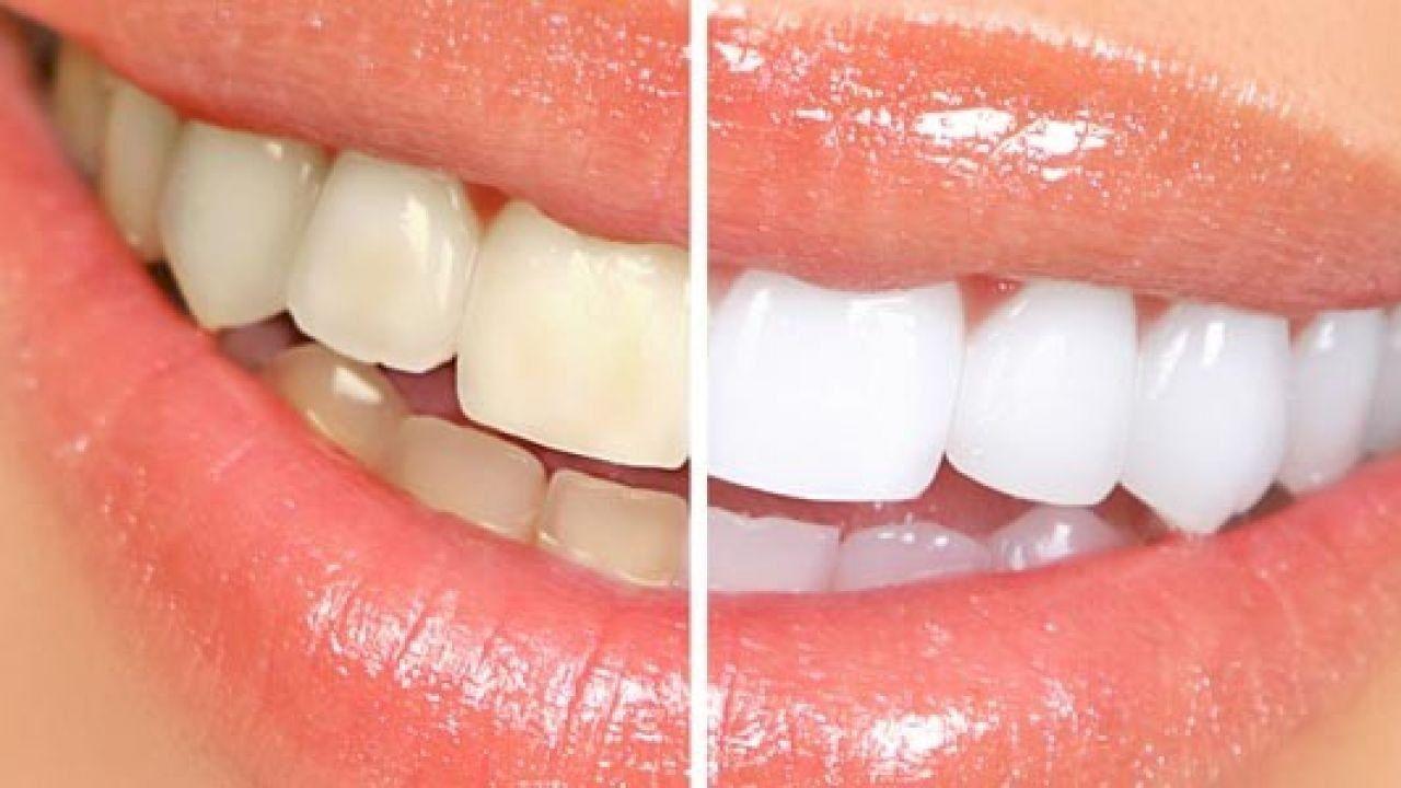 Pin On تجميل الأسنان