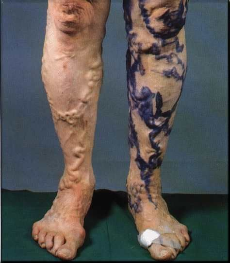 Find Various Treatment Options For Varicose Veins Health