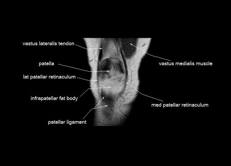 Knee Anatomy Mri Knee Coronal Anatomy Free Cross Sectional