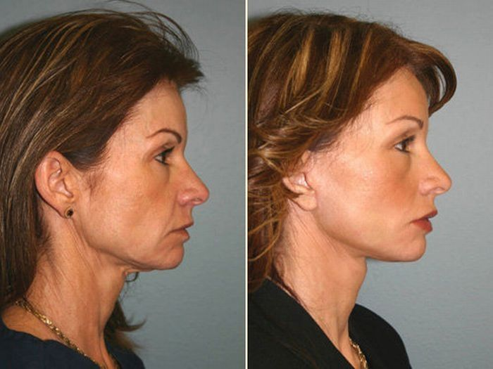 Facial Acupressure Workouts For Strengthening Flabby Face ...