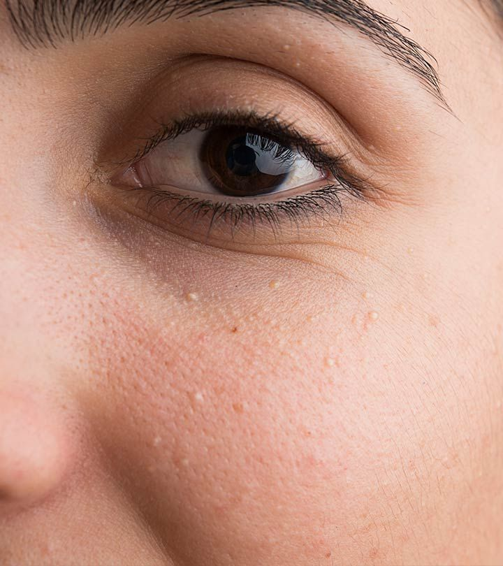 How to get rid of milia white pimples on face skin