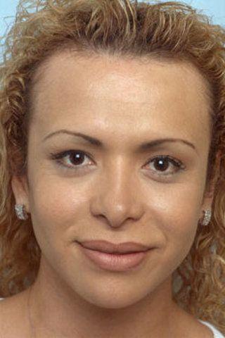 Plastic surgery transsexuals