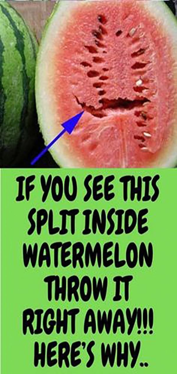 DO YOU LOVE WATERMELONS?? IF YOU SEE THIS SPLIT INSIDE WATERMELON THROW IT RIGHT…