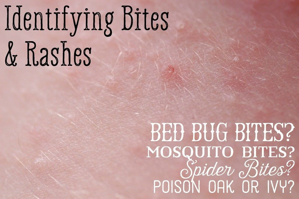 Mosquito And Spider Bites Versus Bed Bug Bites Home Remedies